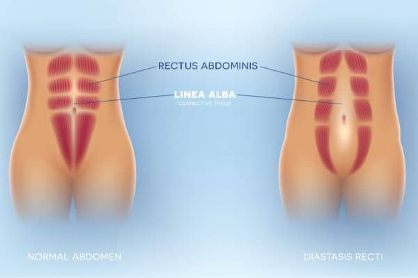 diastasis recti caused by pregnancy